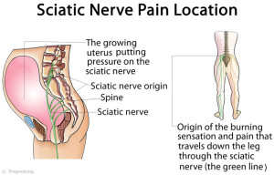 Sciatica-Pain-Location